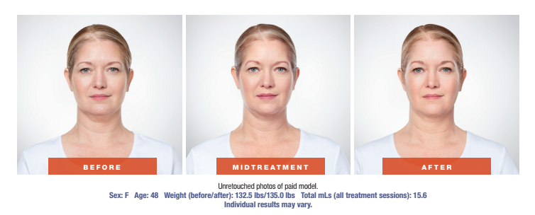 Skin Rejuvenation Treatment - Before and After - Female Patient Age 48 - Front View