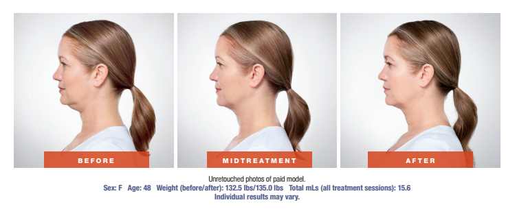 Skin Rejuvenation Treatment - Before and After - Female Patient Age 48 - Side View