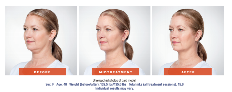 Skin Rejuvenation Treatment - Before and After - Female Patient Age 48