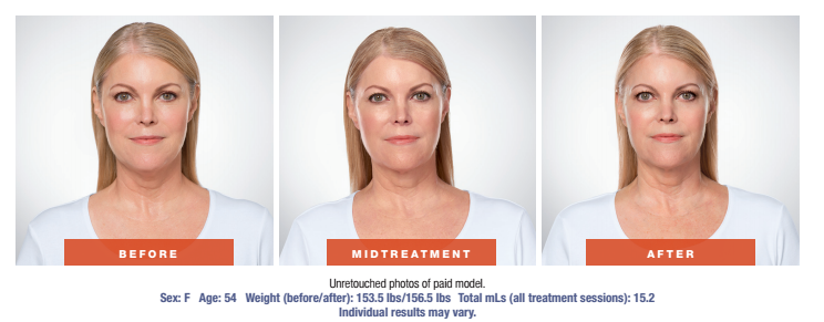 Skin Rejuvenation Treatment - Before and After - Female Patient Age 54 - Front View
