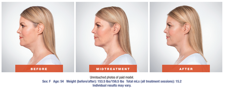 Skin Rejuvenation Treatment - Before and After - Female Patient Age 54 - Side View