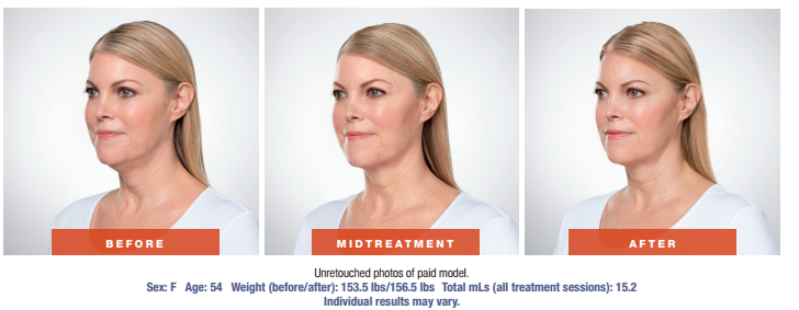 Skin Rejuvenation Treatment - Before and After - Female Patient Age 54