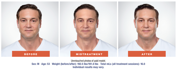 Skin Rejuvenation Treatment - Before and After - Male Patient - Front View