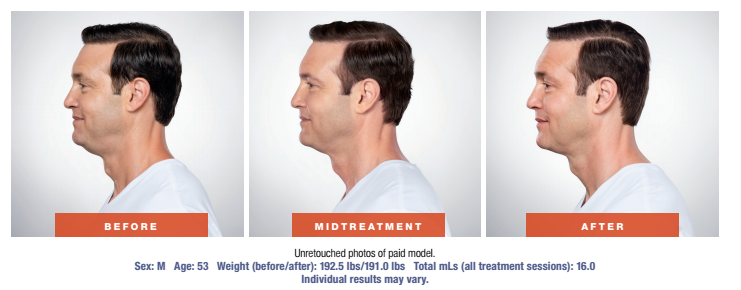 Skin Rejuvenation Treatment - Before and After - Male Patient - Side View