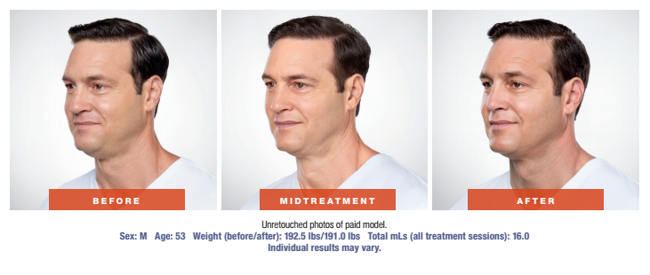 Skin Rejuvenation Treatment - Before and After - Male Patient