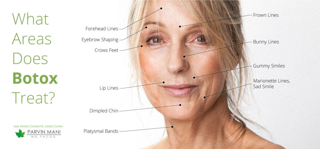 Botox Injections In San Diego | San Diego Cosmetic Laser Clinic
