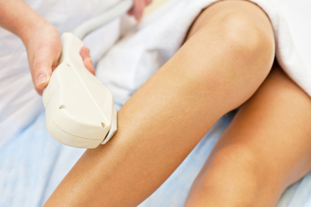 San Diego Cosmetic - Is Laser Hair Removal Permanent?