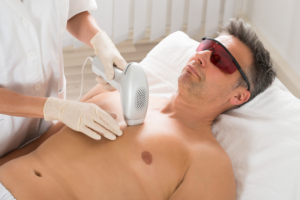 San Diego Laser Hair Removal Chest