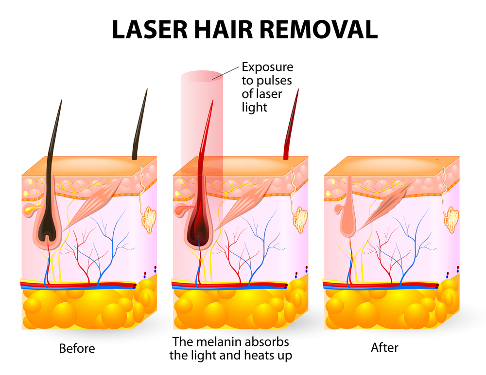 San Diego Laser Hair Removal Infographic