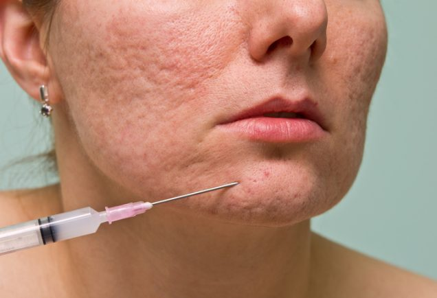 dermal fillers for acne scars